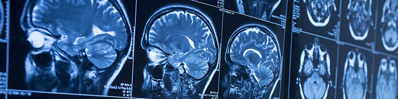 Brain Injury Compensation Claims